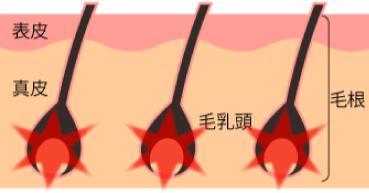 従来の脱毛器とLUMIXシリーズ脱毛器の違い